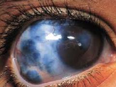 Лечение глаукомы лазером -  эффективная и безболезненная процедура