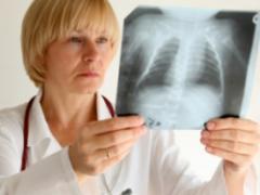 Заразна ли пневмония? Единого мнения нет