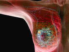 Рак молочной железы и его симптомы