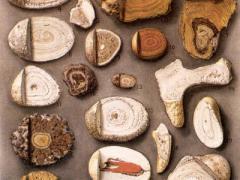 Дробление камней в желчном пузыре – возможность избежать операционного вмешательства