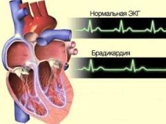 Замедленное сердцебиение брадикардия