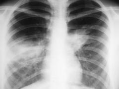 снимки при пневмонии