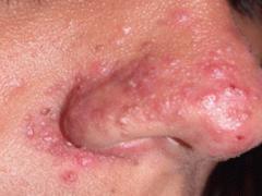 Как избавиться от угрей на носу навсегда