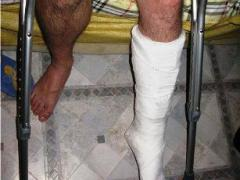 перелом малоберцовой кости