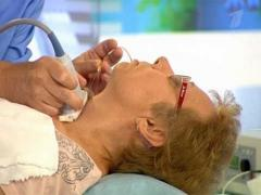удалена щитовидная железа