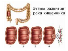 4 стадия рака кишечника