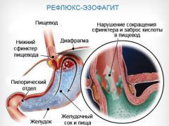 Дистальный эзофагит