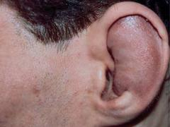 Гематома уха