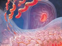 Справляемся с недугом: гиперацидный гастрит или повышенная кислотность желудка