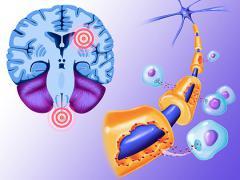 Диагноз рассеянный склероз
