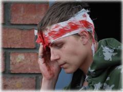 Эпидуральная гематома при черепно-мозговых травмах