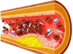 Диета при повышенном холестерине в крови