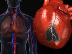 формы инфаркта