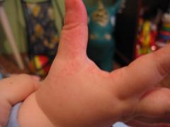 красная сыпь на руках