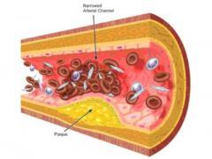 атеросклероз сосудов конечностей