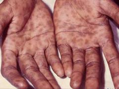 проявления сифилиса на коже