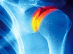 противовоспалительные средства при артрозе