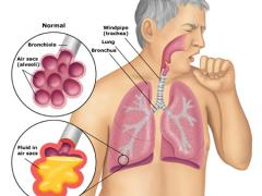 пневмония в условиях больницы