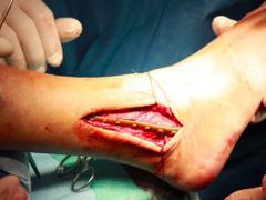 перелом таранной кости