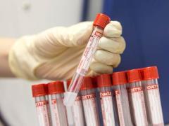 анализы на белковую недостаточность