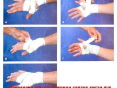что делать при растяжении кисти руки