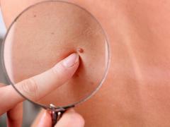 папилломы, как удалить папилломы на теле
