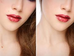 как удалить папилломы на теле, как выглядит кожа до и после удаления