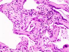 фиброз легких, лечение народными средствами