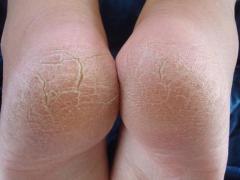 сухая кожа на пятках