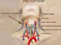 рак шеи симптомы
