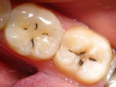 черные полоски на зубах, кариес
