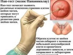дисплазия эндометрия