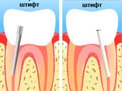 как устанавливают зубы на штифтах