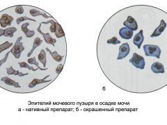 клетки плоского эпителия в моче