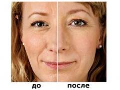 гиалуроновая кислота польза и вред