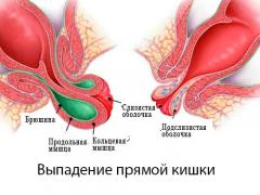 выпадение слизистой прямой кишки