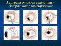 Признаки отслойки сетчатки глаза, диагностика, методы лечения