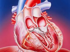 абдоминальная форма инфаркта миокарда