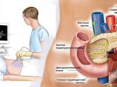как лечить холецистит и панкреатин