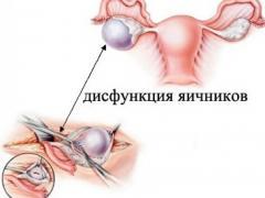дисфункция яичников лечение народными средствами