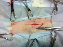 на какой день после операции снимают швы