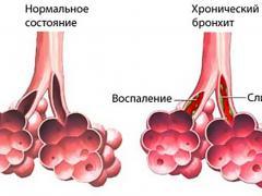 противовоспалительные средства при бронхите