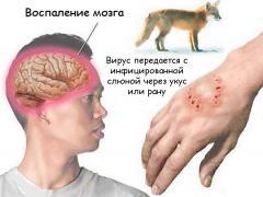 болезни передающиеся через слюну