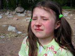 Насморк с кровью у ребенка