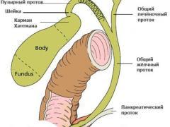 аденомиоматоз желчного пузыря
