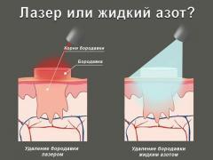 криотерапия и лазерное лечение