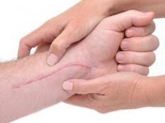 как избавиться от шрамов и рубцов на коже