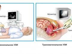 узи, гинекологические исследования