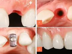 экспресс имплантация зубов преимущества