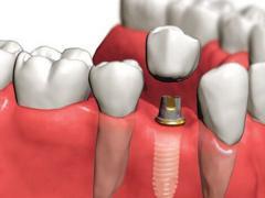 экспресс имплантация зубов стоимсоть